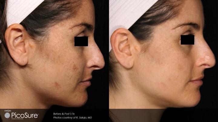 thumbnail_O PicoSure é o primeiro laser do mundo específico para tratamento de melasma olheira cicatrizes de acne e para a remoção de tatuagens de maneira profunda e eficaz